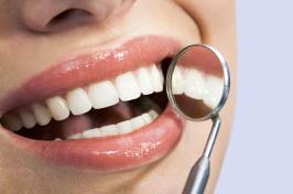 Professionelle Zahnreinigung in Iserlohn